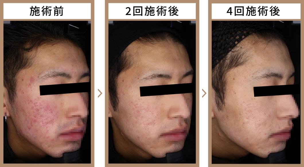 ビフォーアフター症例写真 2回目施術後