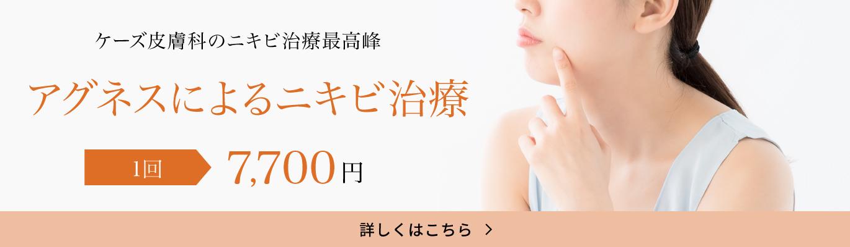 ケーズ皮膚科のニキビ治療最高峰「アグネスによるニキビ治療 1回 7,700円」